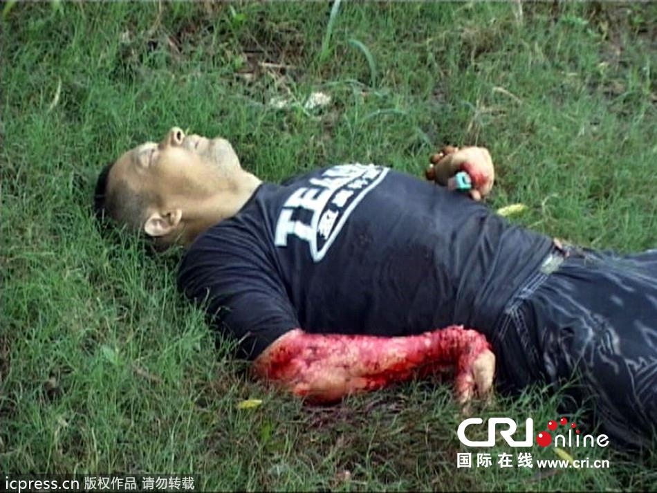 南京一男子河边割腕自杀 鲜血淋漓白骨筋腱清