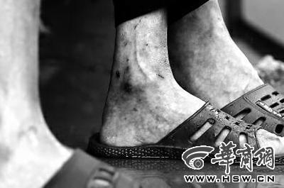 六旬老人养老院被戴脚镣 称老人有癫痫攻击性强
