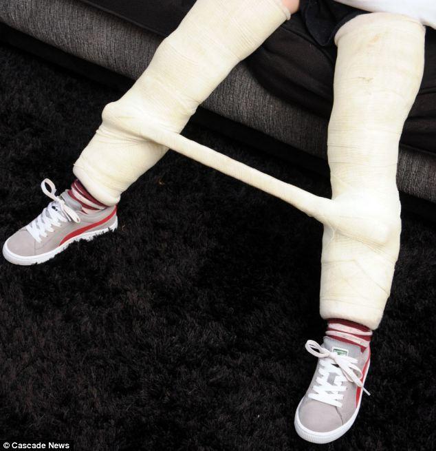 双腿覆盖着石膏
