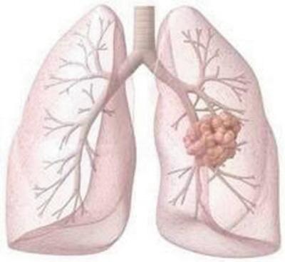 家中哪些因素会致肺癌