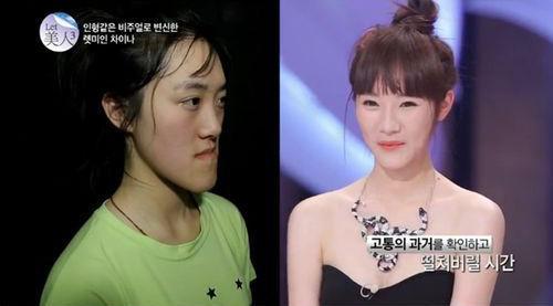 整容前后对比照。图片来自韩国《朝鲜日报》