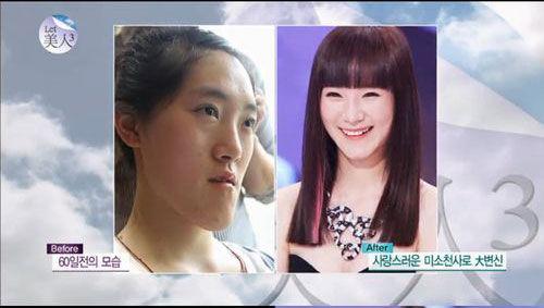 """中国""""恐龙女""""上韩国整容节目变芭比娃娃组图"""