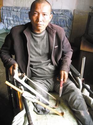 男子因无钱做手术 家中自己锯掉患怪病右腿(图)