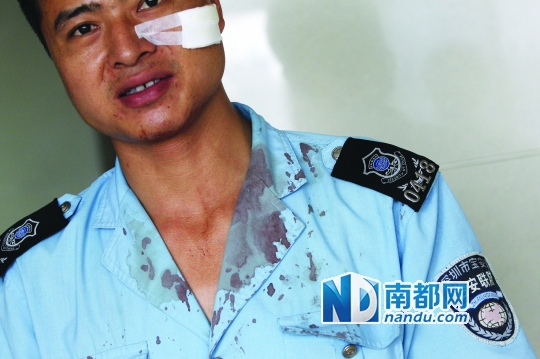 昨日,公明人民医院,一名被砖头砸中头部、制服上沾满血迹的联防队员。