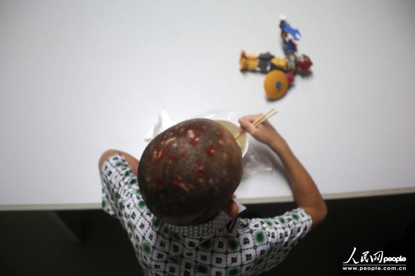 10月15日,经过南方医科大学珠江医院儿科中心医护人员将近一个月的精心救治,先后为小文进行了10次全身血液滤过,这个可怜的男孩终于死里逃生。