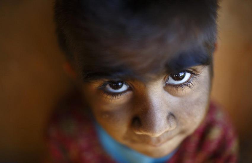 高清:尼泊尔狼人综合症母子通过激光褪毛重新融入社会