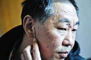 吴先生的脸上留有多处伤痕