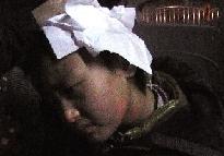 头部受伤流血的男孩。