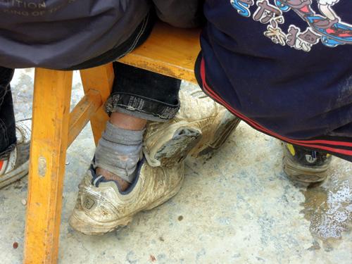 孩子们穿着破旧的鞋袜