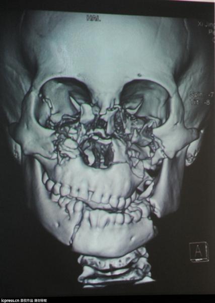 碎脸娃娃6小时手术成功拼脸 男孩术前没流一滴泪(组图