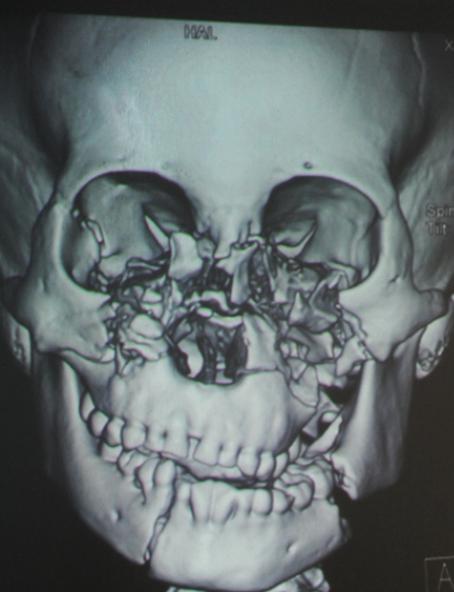 碎脸娃娃拼脸手术成功恢复容貌 事件始末大盘点