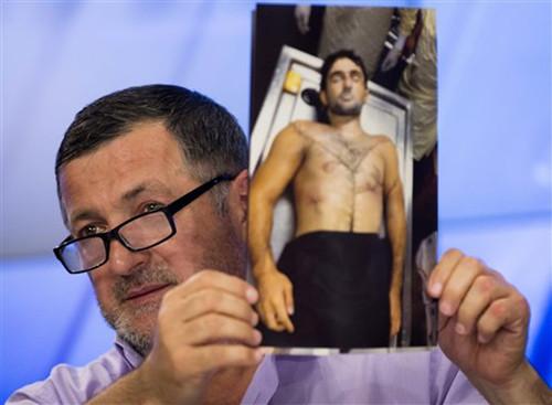 阿卜杜巴克・托达谢夫记者会上展示其儿子弹痕累累的尸体照片。