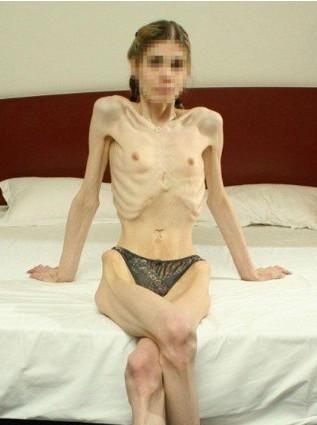 零脂肪女孩暴瘦如柴 网友:会动的骷髅组图