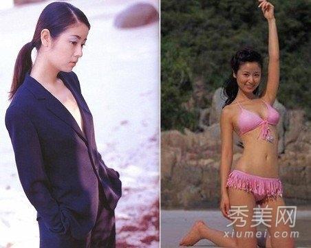 林志玲整容前后照片