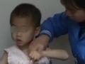 手术后孩子的手怎么伸不直了