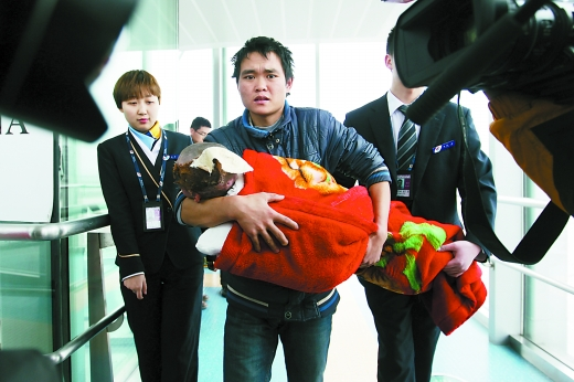 起因:4岁贵州女孩重度烧伤,来渝救治