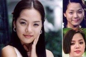 蔡琳在韩国是以童星出道,无奈长大后的她却五官平平。为了继续演艺道路,小眼睛、塌鼻梁的她只好去整容。整容后的蔡琳脸蛋顿时惊艳了不少,娇俏的五官加上甜美的笑容,令人眼前一亮。