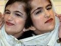 伊朗连体姐妹分离手术背后的故事(二)