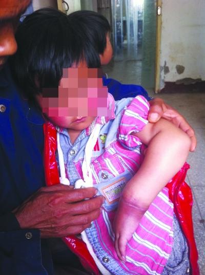 手术前,小兰的左手腕肿得很离奇。