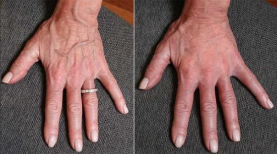 手部整容手术前后对比图。