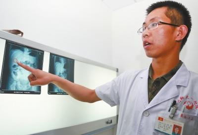 李正伟医生在CT片上发现了童童体内的异物