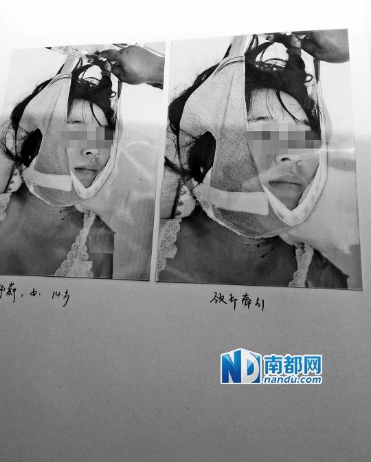 19岁少女玲玲死亡惨状。C FP图片
