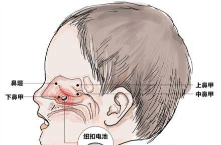 一颗纽扣电池进入男孩鼻腔