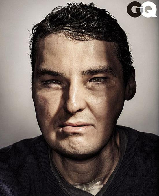 明星 美国/美国男子毁容后做全脸移植手术,成时尚杂志封面明星。网页截图