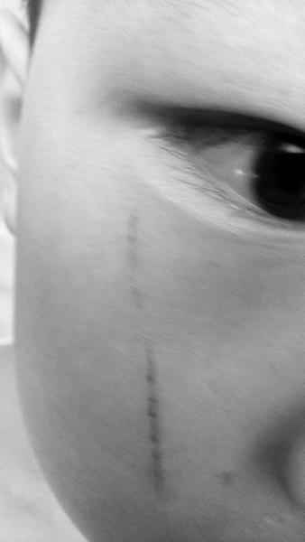 家长出示的孩子脸上的血痕照片