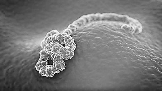 埃博拉:非洲大病,世界心病