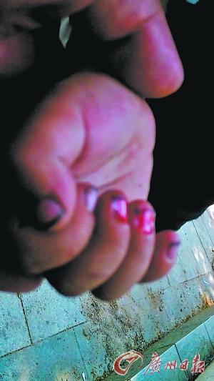 男孩的手指血肉模糊。