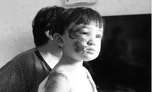 女童身体多数擦伤,面部受伤严重。本报首席记者 裴强 实习生 罗泽林 摄