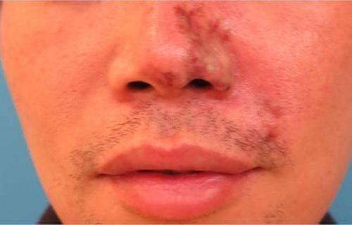 台湾一男生为整容,险失掉鼻子。