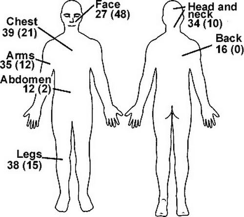论文的研究显示,橡皮子弹致伤通常在四肢和上半身。