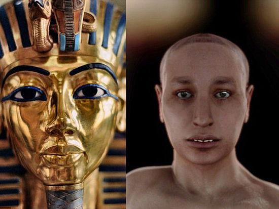 埃及法老王图坦卡蒙真容暴光,龅牙畸形足