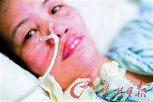 卢秀琼只能靠呼吸机来维持生命。