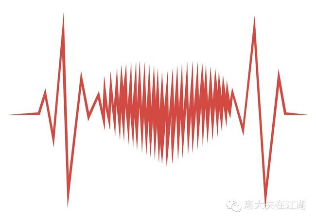 Drawing Lines With Qt : 仅凭心电图诊断心肌缺血,这样靠谱吗? 搜狐健康 搜狐网