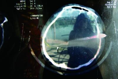 陈赛红的妹妹向记者出示的头部CT照片显示脑部钉子的位置 摄/法制晚报记者 梁千里