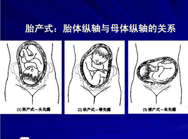 剖宫产月子饮食_图解胎姿势、胎产式、胎方位、胎先露-搜狐母婴