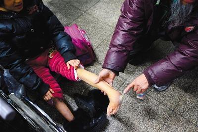 昨日,派出所内,王军展示小飞燕的腿部残疾。