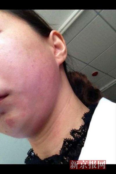 李晓莹发来的受伤部位照片显示,左脸可见大面积红肿。