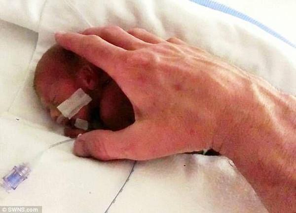 2. 尽管肺等器官还没有发育好,但杰特一生下来就手脚挥舞,还发出一图片