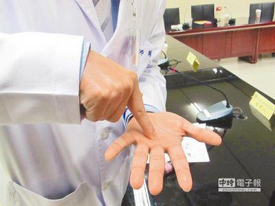 """周文程医师用手指出的手掌与手指交接部分,是""""扳机指""""患者容易有块状突出物的地方。来源:台湾《中国时报》"""