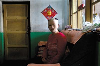 靳魏坤坐在家中,戴着修复面罩。除了去外地,她基本不出门。