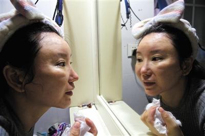 整容手术让陈怡丽鼻子发炎及畸形,嘴唇不对称,别扭的五官让她看上去苍老了十岁。