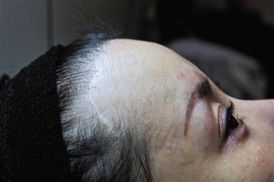 术后宓圆圆发现自己的鼻中隔弯曲,鼻孔朝天并感染,前半部分头皮失去知觉,发际线处有一条20厘米长的疤痕,头发大把脱落。