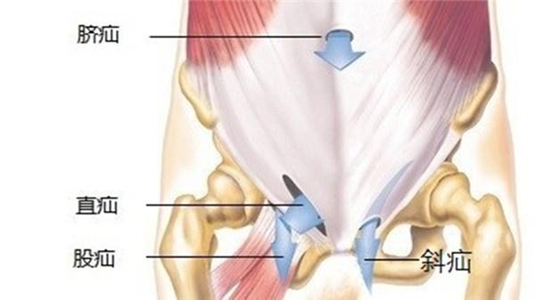 正常腹股沟图片_可以促进腹股沟处淋巴流通