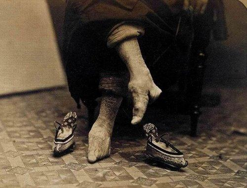 解析妇女小脚为何称金莲?