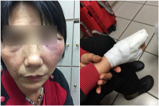 妇人搭乘火车坐错方位,遭女子打到右手骨折、眼睛肿到睁不开,一位自称是妇人女儿的网友将相片传上彀。图自台湾结合新闻网