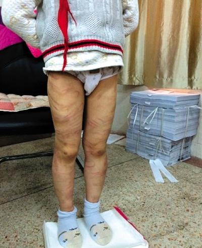 男童疑遭养父母虐待 全身布满百条红血印